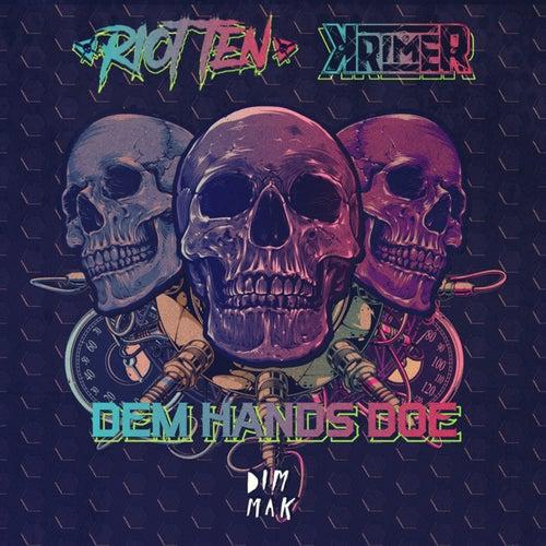 Dem Hands Doe